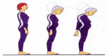طرق معالجة تقوس الظهر