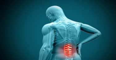 أسباب ألم العصعص وعلاجه