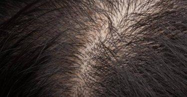 أسباب إلتهاب بصيلات الشعر وعلاجها