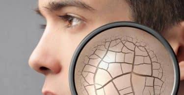 أسباب التشققات الجلدية وعلاجها