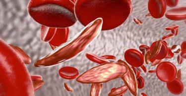 أعراض أنيميا البحر المتوسط وكيفية علاجها والوقاية منها