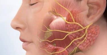 أعراض التهاب العصب السابع وعلاجه