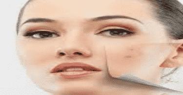أعراض نقص فيتامين د في الجلد