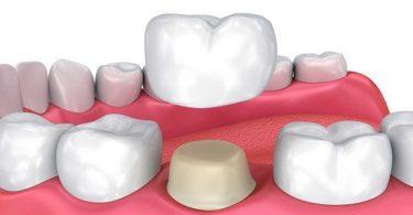 إذاعة مدرسية متكاملة عن الأسنان