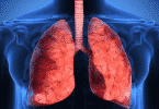 اعراض ثقب الرئة
