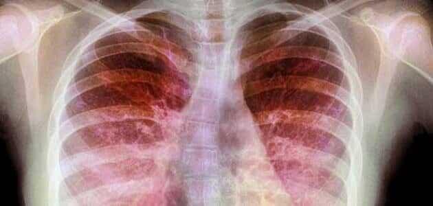 الأمراض الصدرية وعلاجها