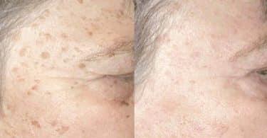 ظهور نقط سوداء في الجلد