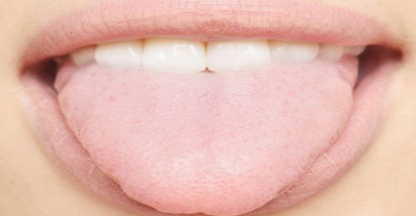 علاج قلة اللعاب في الفم