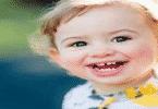 علامات نقص الفيتامين عند الأطفال