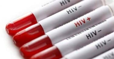 كيفية الكشف عن مرض الإيدز
