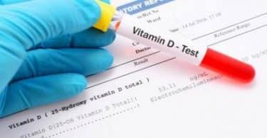 ما هو تحليل فيتامين د