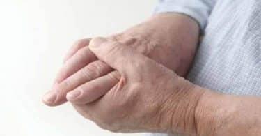 ما هو سبب مرض تصلب الجلد ؟