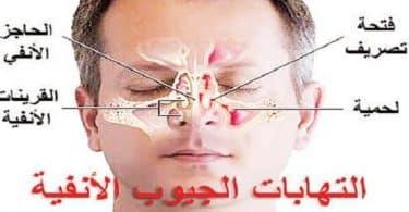ما هي أعراض الجيوب الأنفية وعلاجها