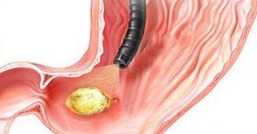 ما هي علامات الشفاء الكاملة من جرثومة المعدة ؟