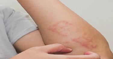 أين يكون الجلد أكثر حساسية في الجسم