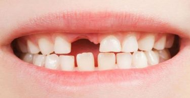 تبديل الأسنان