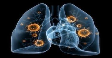 علاج مرض ذات الرئة