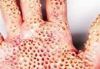 فوبيا النخاريب والثقوب وعلاجها