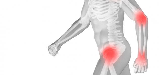 فيتامين د لعلاج هشاشة العظام