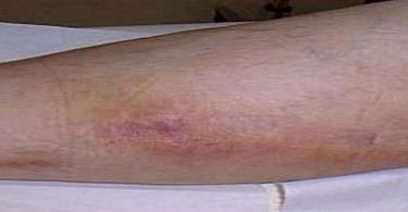 أعراض الجلطة الدموية