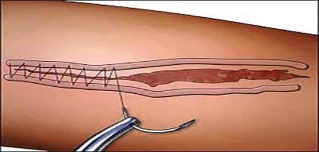 أنواع خياطة الجروح وطرق تعقيمها
