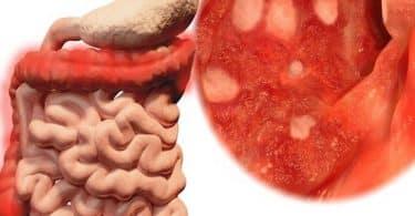 احدث علاج لمرض التهاب القولون التقرحي