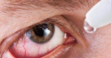 ارتخاء جفن العين أسبابه وعلاجه
