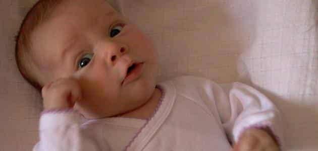 الزغطة عند حديثي الولادة وعلاجها