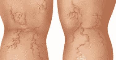 الليزر الوريدي و التردد الحراري في علاج دوالي الساق