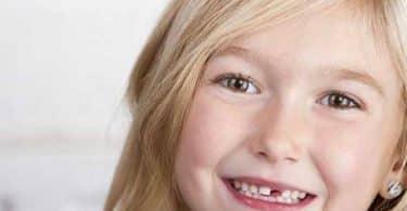 تأخير تبديل الأسنان عند الأطفال