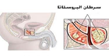 سرطان البروستاتا وانتشاره في العظام