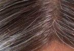 طرق علاج الشعر الابيض المبكر نهائياً