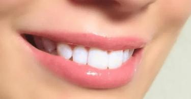 علاج الابتسامة اللثوية وبروز الفك العلوي