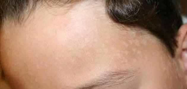علاج البقع البيضاء في الوجه ونقص فيتامين
