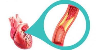 علاج الهبوط وخفقان القلب