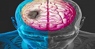 ماهي أسباب الجلطات الدماغية