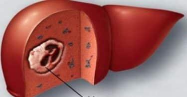 ما معنى وحمة على الكبد