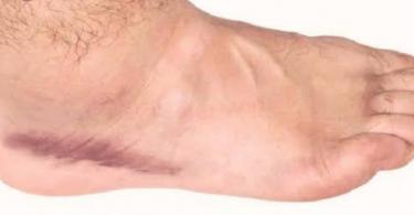 ما هي أعراض الجلطة في الساق