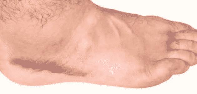 ما هي أعراض الجلطة في الساق معلومة ثقافية