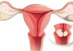 ما هي اعراض اللحمية في الرحم