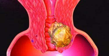 ما هي الأمراض التي تصيب عنق الرحم