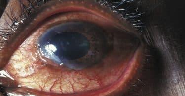 ما هي قرحة العين وطرق الوقاية منها ؟