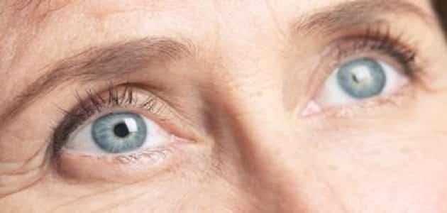 مرض المياه الزرقاء والبيضاء في العين