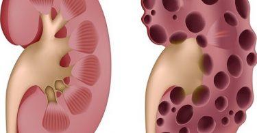 نسبة البولينا الخطرة في الدم