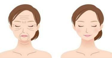 نصائح بعد عملية شد الوجه بالخيوط