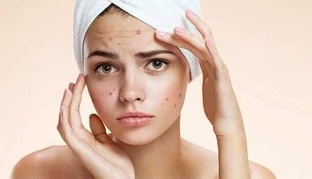 الاكزيما الدهنية في الوجه اسبابها وعلاجها