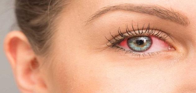 أسباب احمرار العين وكيفية علاجها
