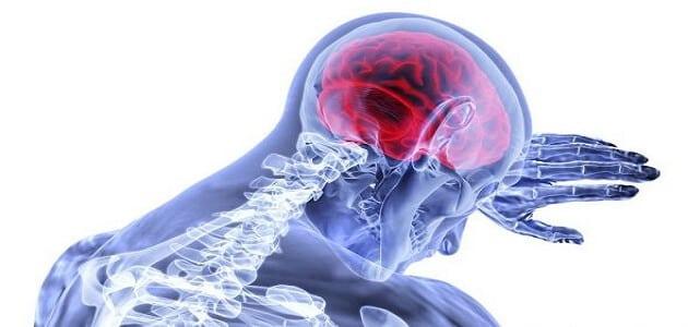 عدم وصول الدم للمخ أسبابه وعلاجه