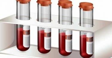 ما هو تحليل غازات الدم الشرياني
