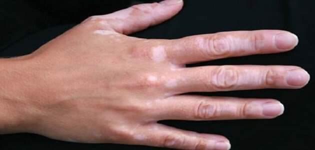 ظهور بقع بيضاء على اليد وعلاجها معلومة ثقافية